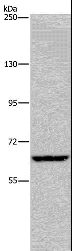 Western blot analysis of HeLa cell, using IVL Polyclonal Antibody at dilution of 1:200.