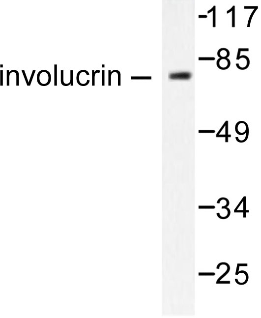 Western blot of Involucrin (P568) pAb in extracts from HUVEC cells.