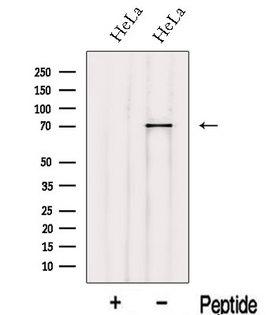 IVNS1ABP / NS1-BP Antibody - Western blot analysis of extracts of HeLa cells using IVNS1ABP antibody. The lane on the left was treated with blocking peptide.