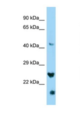 IZUMO4 antibody Western blot of HepG2 Cell lysate. Antibody concentration 1 ug/ml.  This image was taken for the unconjugated form of this product. Other forms have not been tested.