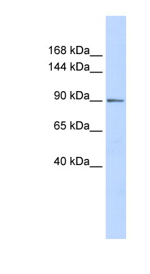 PHF16 antibody LS-C101490 Western blot of Placenta lysate.  This image was taken for the unconjugated form of this product. Other forms have not been tested.