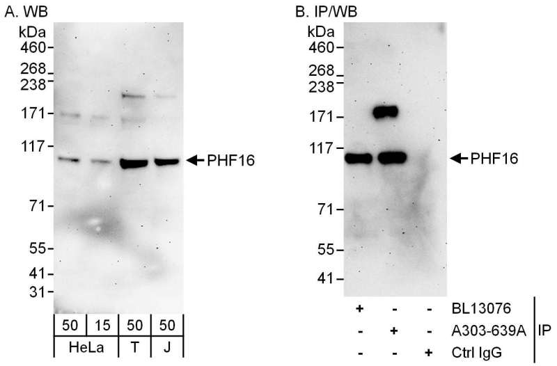 Detection of Human PHF16 by Western Blot and Immunoprecipitation. Samples: Whole cell lysate from HeLa (15 and 50 ug for WB; 1 mg for IP, 20% of IP loaded), 293T (T; 50 ug) and Jurkat (J; 50 ug) cells. Antibodies: Affinity purified rabbit anti-PHF16 antibody used for WB at 0.4 ug/ml (A) and 1 ug/ml (B) and used for IP at 6 ug/mg lysate. PHF16 was also immunoprecipitated by rabbit anti-PHF16 antibody BL13076, which recognizes an upstream epitope. Detection: Chemiluminescence with exposure times of 3 minutes (A and B).