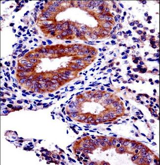 PHF16 Antibody immunohistochemistry of formalin-fixed and paraffin-embedded human uterus tissue followed by peroxidase-conjugated secondary antibody and DAB staining.
