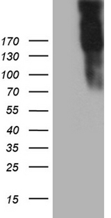 JAG1 / Jagged 1 Antibody - HEK293T cells were transfected with the pCMV6-ENTRY control. (Left lane) or pCMV6-ENTRY JAG1. (Right lane) cDNA for 48 hrs and lysed