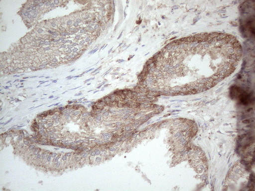 JAG1 / Jagged 1 Antibody - Immunohistochemical staining of paraffin-embedded Human prostate tissue within the normal limits using anti-JAG1 mouse monoclonal antibody. (Heat-induced epitope retrieval by 1mM EDTA in 10mM Tris buffer. (pH8.5) at 120°C for 3 min. (1:150)