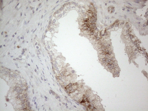 JAG1 / Jagged 1 Antibody - Immunohistochemical staining of paraffin-embedded Carcinoma of Human prostate tissue using anti-JAG1 mouse monoclonal antibody. (Heat-induced epitope retrieval by 1mM EDTA in 10mM Tris buffer. (pH8.5) at 120°C for 3 min. (1:150)