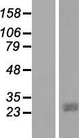 JAZF1 Protein - Western validation with an anti-DDK antibody * L: Control HEK293 lysate R: Over-expression lysate