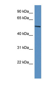 JMJD4 antibody Western blot of ACHN lysate. This image was taken for the unconjugated form of this product. Other forms have not been tested.