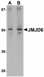 Western blot of JMJD6 in human brain tissue lysate with JMJD6 antibody at (A) 1 and (B) 2 ug/ml. Below: Immunohistochemistry of JMJD6 in rat brain tissue with JMJD6 antibody at 2.5 ug/ml.