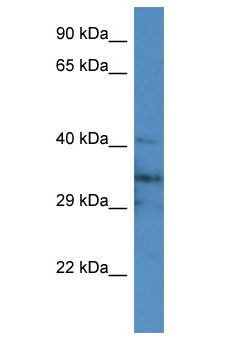 JPH4 Antibody - JPH4 antibody Western Blot of Mouse Brain. Antibody dilution: 1 ug/ml.  This image was taken for the unconjugated form of this product. Other forms have not been tested.