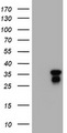 HEK293T cells were transfected with the pCMV6-ENTRY control (Left lane) or pCMV6-ENTRY JUN (Right lane) cDNA for 48 hrs and lysed. Equivalent amounts of cell lysates (5 ug per lane) were separated by SDS-PAGE and immunoblotted with anti-JUN.