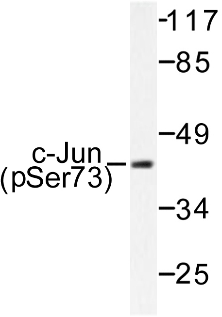 Western blot of p-c-Jun (S73) pAb in extracts from HeLa cells treated with UV.