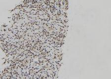 JUNB / JUN-B Antibody - 1:100 staining human spleen tissue by IHC-P. The sample was formaldehyde fixed and a heat mediated antigen retrieval step in citrate buffer was performed. The sample was then blocked and incubated with the antibody for 1.5 hours at 22°C. An HRP conjugated goat anti-rabbit antibody was used as the secondary.