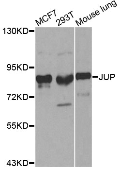 Western blot analysis of extracts of various cell lines, using JUP antibody at 1:500 dilution. The secondary antibody used was an HRP Goat Anti-Rabbit IgG (H+L) at 1:10000 dilution. Lysates were loaded 25ug per lane and 3% nonfat dry milk in TBST was used for blocking. An ECL Kit was used for detection.
