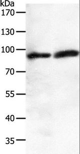 Western blot analysis of A549 and human fetal brain tissue, using JUP Polyclonal Antibody at dilution of 1:200.