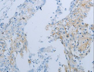 Immunohistochemistry of Human cervical cancer using JUP Polyclonal Antibody at dilution of 1:25.