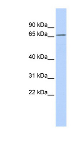 K13 / KCNG Antibody - KCNG1 / Kv6.1 antibody Western blot of MCF7 cell lysate. This image was taken for the unconjugated form of this product. Other forms have not been tested.