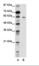 K13 / KCNG Antibody - A: Marker, B: HepG2 Cell Lysate.  This image was taken for the unconjugated form of this product. Other forms have not been tested.