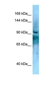 KANK2 Antibody - KANK2 antibody Western blot of Fetal Liver lysate. Antibody concentration 1 ug/ml.  This image was taken for the unconjugated form of this product. Other forms have not been tested.