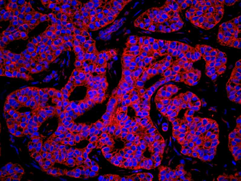 Detection of Human KARS by Immunofluorescence. Sample: FFPE section of human breast carcinoma. Antibody: Affinity purified rabbit anti-KARS used at a dilution of 1:100. Detection: Red-fluorescent goat anti-rabbit IgG highly cross-adsorbed Antibody Hilyte Plus 555 (A120-501E) used at a dilution of 1:100. Epitope Retrieval Buffer-High pH (IHC-101J) was substituted for Epitope Retrieval Buffer-Reduced pH.