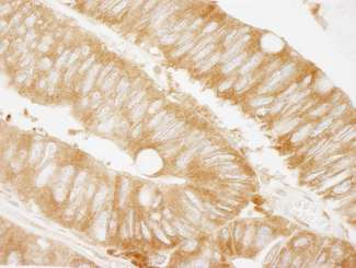 Detection of Human KARS by Immunohistochemistry. Sample: FFPE section of human colon carcinoma. Antibody: Affinity purified rabbit anti-KARS used at a dilution of 1:250. Epitope Retrieval Buffer-High pH (IHC-101J) was substituted for Epitope Retrieval Buffer-Reduced pH.