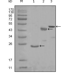 Western blot using KARS mouse monoclonal antibody against truncated Trx-KARS recombinant protein (1), truncated MBP-KARS (aa90-174) and full length KARS (aa1-188) transfected CHO-K1 cell lysate (3).