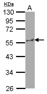 Sample (30 ug of whole cell lysate) A: HepG2 10% SDS PAGE KATNA1 antibody diluted at 1:1000