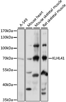 KBTBD10 / Sarcosin Antibody - Western blot analysis of extracts of various cell lines, using KLHL41 antibody at 1:1000 dilution. The secondary antibody used was an HRP Goat Anti-Rabbit IgG (H+L) at 1:10000 dilution. Lysates were loaded 25ug per lane and 3% nonfat dry milk in TBST was used for blocking. An ECL Kit was used for detection and the exposure time was 1s.