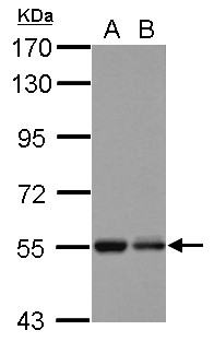 Sample (30 ug of whole cell lysate) A: U87-MG B: SK-N-SH 7.5% SDS PAGE KBTBD4 antibody diluted at 1:1000