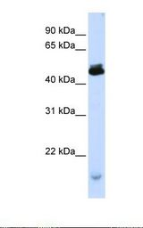 KCMF1 Antibody - Transfected 293T cell lysate. Antibody concentration: 1.0 ug/ml. Gel concentration: 12%.  This image was taken for the unconjugated form of this product. Other forms have not been tested.