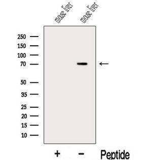 KCNA4 / Kv1.4 Antibody - Western blot analysis of extracts of mouse liver tissue using Kv1.4-Specific antibody. The lane on the left was treated with blocking peptide.