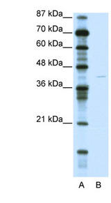 KCNA7 / Kv1.7 antibody LS-B972 Western blot of Jurkat lysate.  This image was taken for the unconjugated form of this product. Other forms have not been tested.