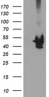 HEK293T cells were transfected with the pCMV6-ENTRY control (Left lane) or pCMV6-ENTRY KCNAB1 (Right lane) cDNA for 48 hrs and lysed. Equivalent amounts of cell lysates (5 ug per lane) were separated by SDS-PAGE and immunoblotted with anti-KCNAB1.