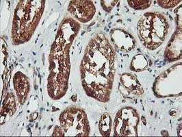 IHC of paraffin-embedded Human Kidney tissue using anti-KCNAB1 mouse monoclonal antibody.