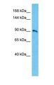 Western blot of KCNB1 Antibody with human 721_B Whole Cell lysate.  This image was taken for the unconjugated form of this product. Other forms have not been tested.