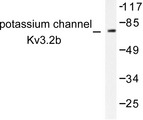 Western blot of Potassium Channel Kv3.2b/Kcnc2 (P626) pAb in extracts from HepG2 cells.