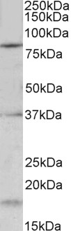 KCNC3 antibody (0.2 ug/ml) staining of Mouse fetal Brain lysate (35 ug protein in RIPA buffer). Primary incubation was 1 hour. Detected by chemiluminescence.