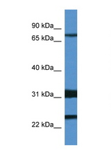 KCND1 / Kv4.1 antibody Western blot of Mouse Spleen lysate. Antibody concentration 1 ug/ml. This image was taken for the unconjugated form of this product. Other forms have not been tested.