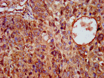 Immunohistochemistry image at a dilution of 1:200 and staining in paraffin-embedded human cervical cancer performed on a Leica BondTM system. After dewaxing and hydration, antigen retrieval was mediated by high pressure in a citrate buffer (pH 6.0) . Section was blocked with 10% normal goat serum 30min at RT. Then primary antibody (1% BSA) was incubated at 4 °C overnight. The primary is detected by a biotinylated secondary antibody and visualized using an HRP conjugated SP system.