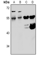 KCNF1 / KCNF Antibody - Western blot analysis of Kv5.1 expression in COS7 (A), Panc1 (B), mouse heart (C), rat heart (D) whole cell lysates.
