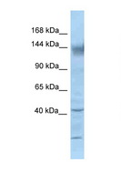KCNH2 / HERG Antibody - KCNH2 / Kv11.1 antibody Western blot of Mouse Kidney lysate. Antibody concentration 1 ug/ml.  This image was taken for the unconjugated form of this product. Other forms have not been tested.