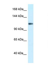 KCNH3 / Kv12.2 antibody LS-C145544 Western blot of COL0205 Cell lysate. Antibody concentration 1 ug/ml.  This image was taken for the unconjugated form of this product. Other forms have not been tested.