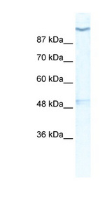 KCNH6 / Kv11.2 antibody LS-B976 Western blot of HepG2 cell lysate.  This image was taken for the unconjugated form of this product. Other forms have not been tested.