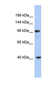 KCNH6 / Kv11.2 antibody LS-C110043 Western blot of NCI-H226 cell lysate.  This image was taken for the unconjugated form of this product. Other forms have not been tested.