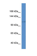 KCNH8 / Kv12.1 antibody Western blot of Mouse Heart lysate. Antibody concentration 1 ug/ml. This image was taken for the unconjugated form of this product. Other forms have not been tested.