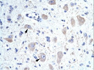 KCNIP1 antibody LS-C30612 was used in IHC to stain formalin-fixed, paraffin-embedded human brain.  This image was taken for the unconjugated form of this product. Other forms have not been tested.