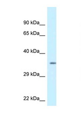 KCNIP2 / KCHIP2 antibody Western blot of 293T Cell lysate. Antibody concentration 1 ug/ml.  This image was taken for the unconjugated form of this product. Other forms have not been tested.