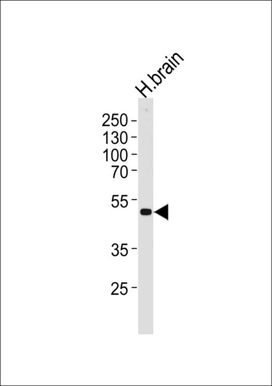 Western blot of lysate from human brain tissue lysate, using KCNJ12 Antibody. Antibody was diluted at 1:1000 at each lane. A goat anti-rabbit IgG H&L (HRP) at 1:5000 dilution was used as the secondary antibody. Lysate at 35ug per lane.