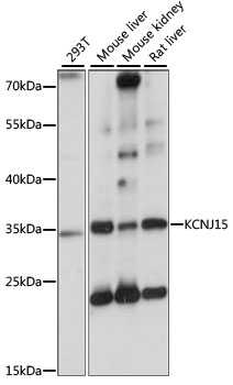 KCNJ15 / KIR4.2 Antibody - Western blot analysis of extracts of various cell lines, using KCNJ15 antibody at 1:1000 dilution. The secondary antibody used was an HRP Goat Anti-Rabbit IgG (H+L) at 1:10000 dilution. Lysates were loaded 25ug per lane and 3% nonfat dry milk in TBST was used for blocking. An ECL Kit was used for detection and the exposure time was 1s.