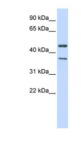 KCNJ4 / Kir2.3 antibody LS-C110000 Western blot of 293T cell lysate.  This image was taken for the unconjugated form of this product. Other forms have not been tested.